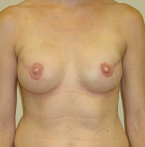 Breast Reconstruction after 1216632