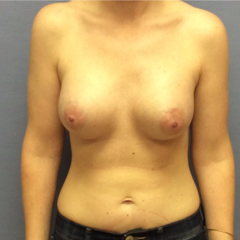 25-34 year old woman treated with Breast Augmentation after 3147448