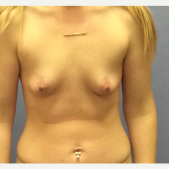 25-34 year old woman treated with Breast Augmentation before 3147448