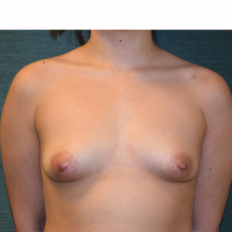 18-24 year old woman treated with Breast Augmentation before 3205324