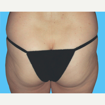 Liposuction before 3810635