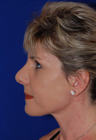 Nose Surgery after 1016876