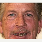 45-54 year old man treated with All-on-4 Dental Implants before 3691207