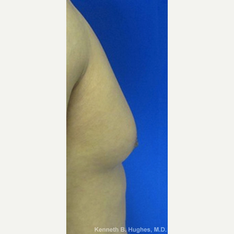 Male Breast Reduction before 3099967