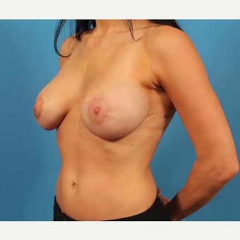 31 year old woman treated with Breast Implants and Peri-Areolar Mastopexy (Breast Lift) after 3102439
