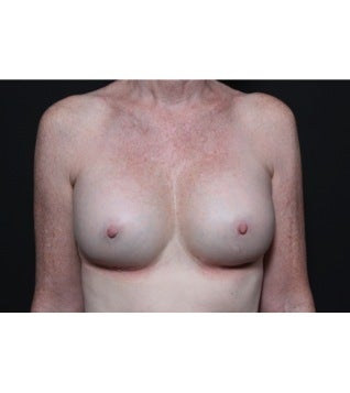This 56 year old woman underwent breast implant revision after 1112709