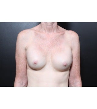 This 56 year old woman underwent breast implant revision before 1112709