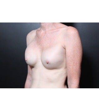 This 56 year old woman underwent breast implant revision 1112709