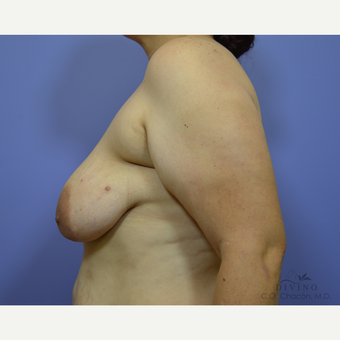 35-44 year old woman treated with Breast Lift with Implants before 3386468