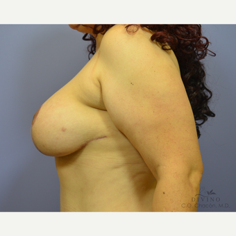 35-44 year old woman treated with Breast Lift with Implants after 3386468