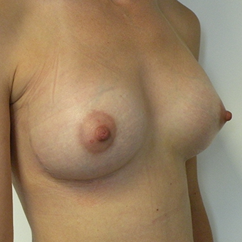 35-44 year old woman treated with Mentor Breast Implants after 3054643