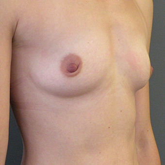35-44 year old woman treated with Mentor Breast Implants before 3054643