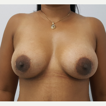 25-34 year old man treated with Breast Augmentation after 3688664