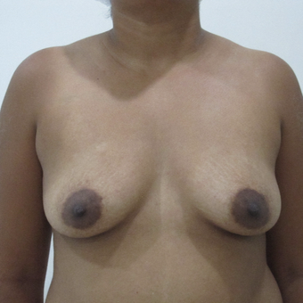 25-34 year old man treated with Breast Augmentation before 3688664
