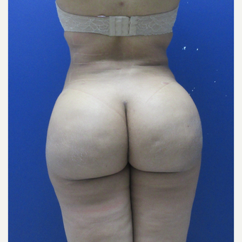 25-34 year old woman treated with Brazilian Butt Lift after 3690875