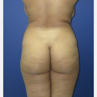 25-34 year old woman treated with Brazilian Butt Lift before 3690875