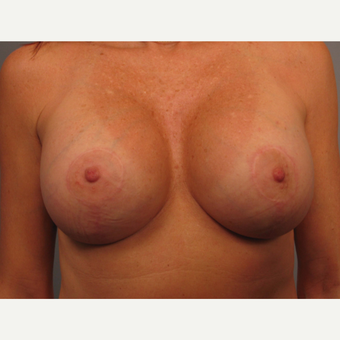45-54 year old woman treated with Breast Augmentation after 3493252