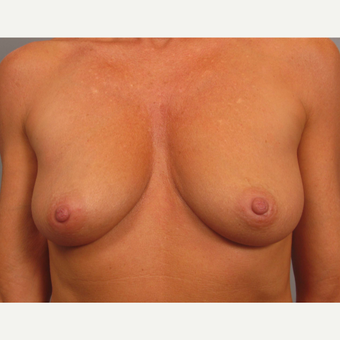 45-54 year old woman treated with Breast Augmentation before 3493252