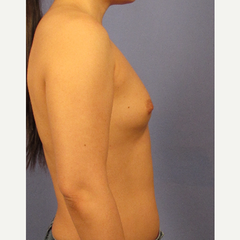 25-34 year old woman treated with Breast Augmentation before 3106697