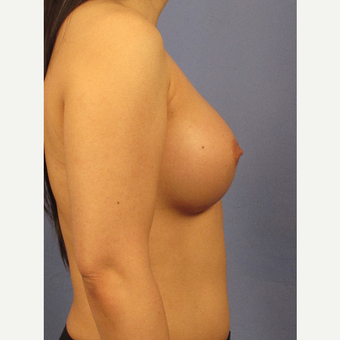 25-34 year old woman treated with Breast Augmentation after 3106697