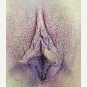 18-24 year old woman treated with Labiaplasty before 3311669