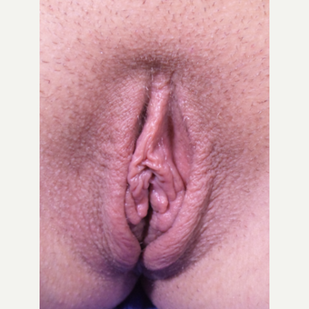 18-24 year old woman treated with Labiaplasty after 3311669