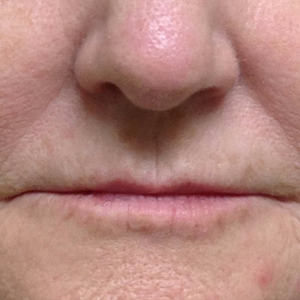 Woman treated with Volbella before 3603969