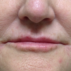 Woman treated with Volbella after 3603969