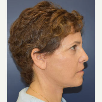 55-64 year old woman treated with Lower Face Lift after 3460967