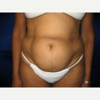 35-44 year old woman treated with Tummy Tuck before 3766118