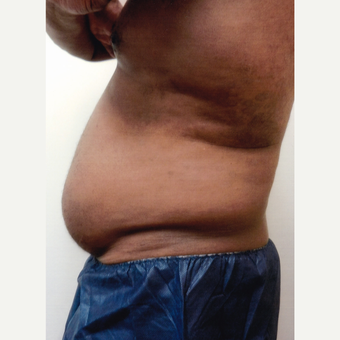 55-64 year old man treated with Male Tummy Tuck before 3603719