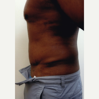 55-64 year old man treated with Male Tummy Tuck after 3603719
