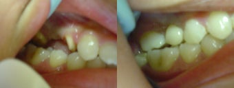 Replaced Missing Tooth before 1236059