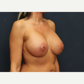 35-44 year old woman treated with Breast Lift with Implants after 3344158