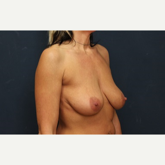 35-44 year old woman treated with Breast Lift with Implants before 3344158