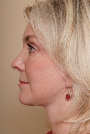 Neck Lift after 1392493