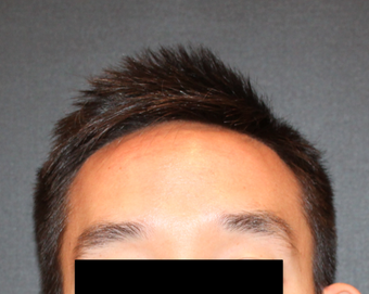 This is a 28 year old male who felt self-conscious of his large forehead. before 2724604