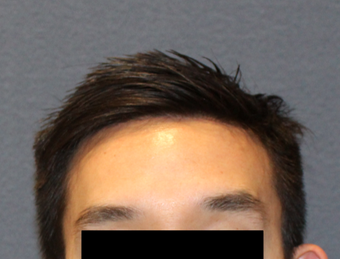 This is a 28 year old male who felt self-conscious of his large forehead. after 2724604