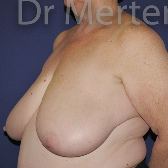 Breast Reduction before 3648532