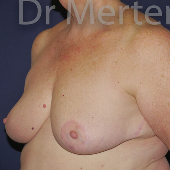 Breast Reduction after 3648532