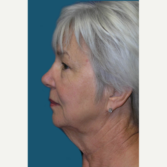 60  year old woman treated with Facelift and Necklift before 3465383