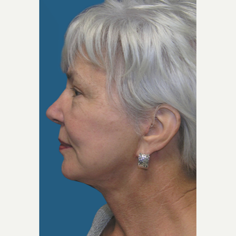 60  year old woman treated with Facelift and Necklift after 3465383