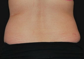 CoolSculpting  before 1514781