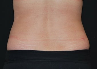 CoolSculpting  after 1514781
