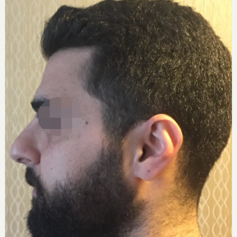 25-34 year old man treated with Rhinoplasty before 3329821