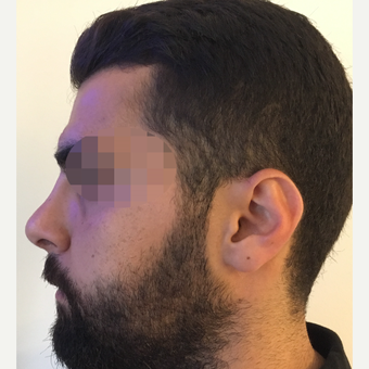 25-34 year old man treated with Rhinoplasty after 3329821