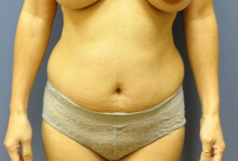 Hourglass Tummy Tuck  before 527168