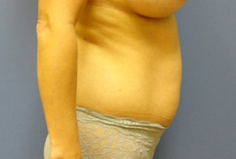 Hourglass Tummy Tuck  527168