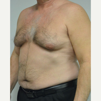 55-64 year old man treated with Male Breast Reduction before 3054058