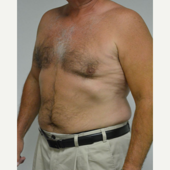 55-64 year old man treated with Male Breast Reduction after 3054058